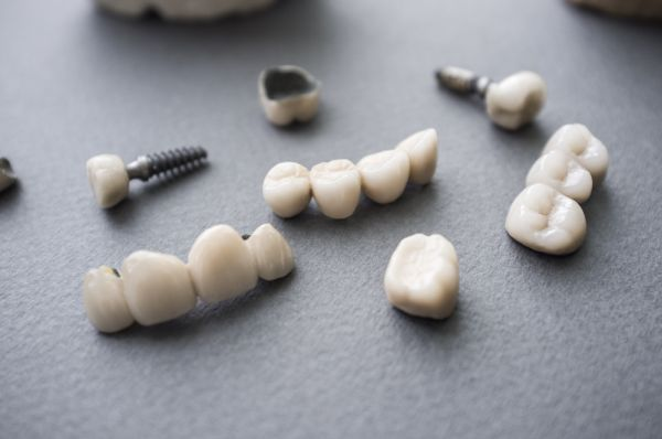 Ceramic Crowns: An Option For Same Day Smile Transformation