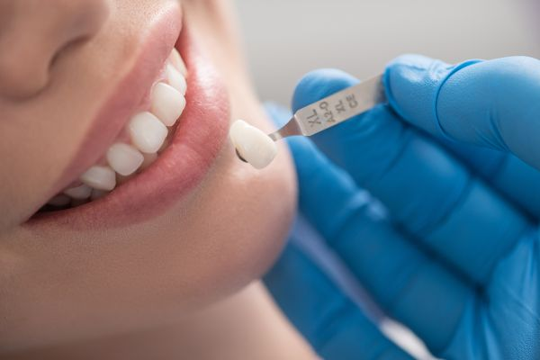 Have Gray Teeth? Dental Veneers Have You Covered