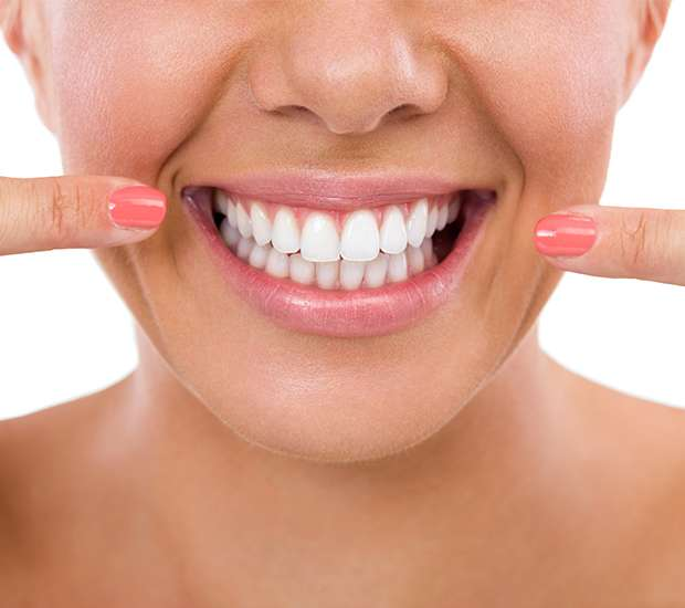 Coral Gables What Is Gum Contouring & Reshaping