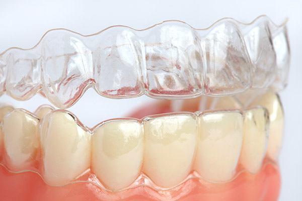Why You Should See An Invisalign Dentist