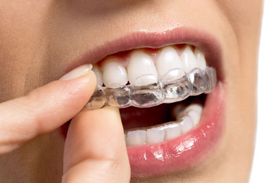The Process Of Straightening Teeth From An Invisalign® Dentist