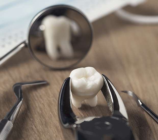 Coral Gables When Is a Tooth Extraction Necessary